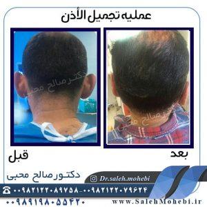 الرعایه بعد الجراحه التجمیلیه الاذن